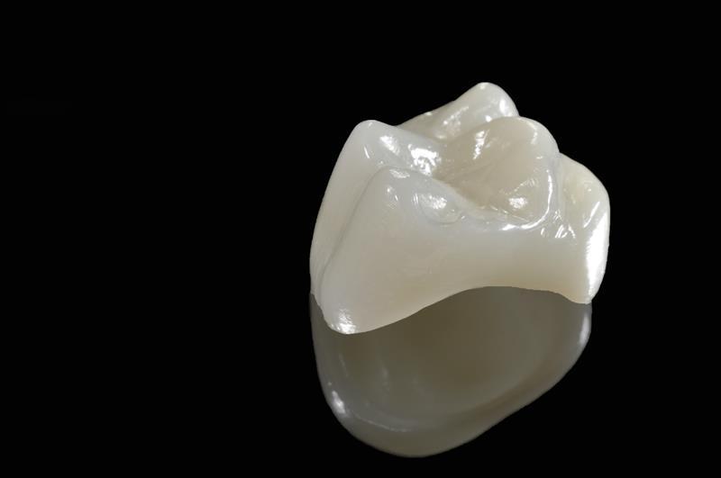 Porcelain Crowns  Rensselaer, IN