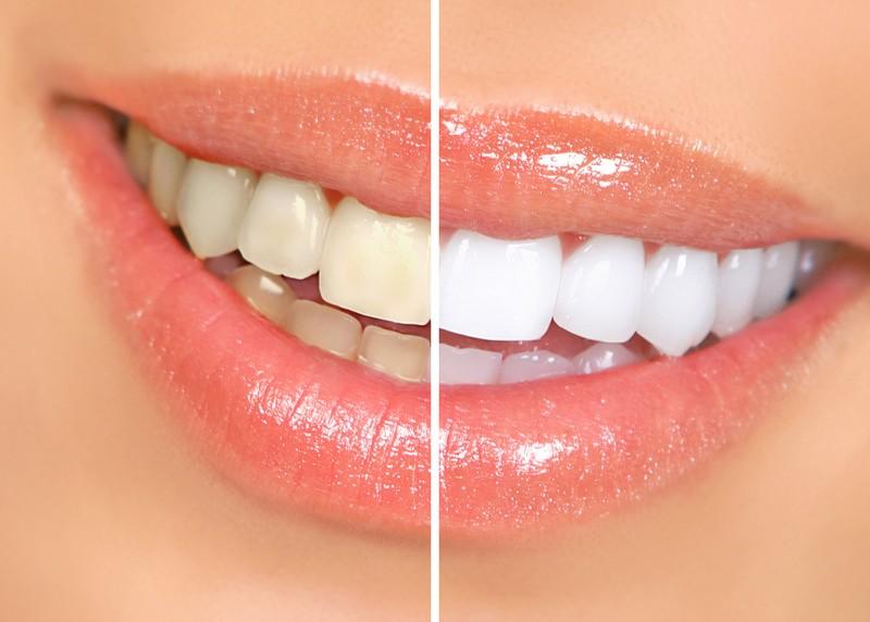 Teeth Whitening  Rensselaer, IN